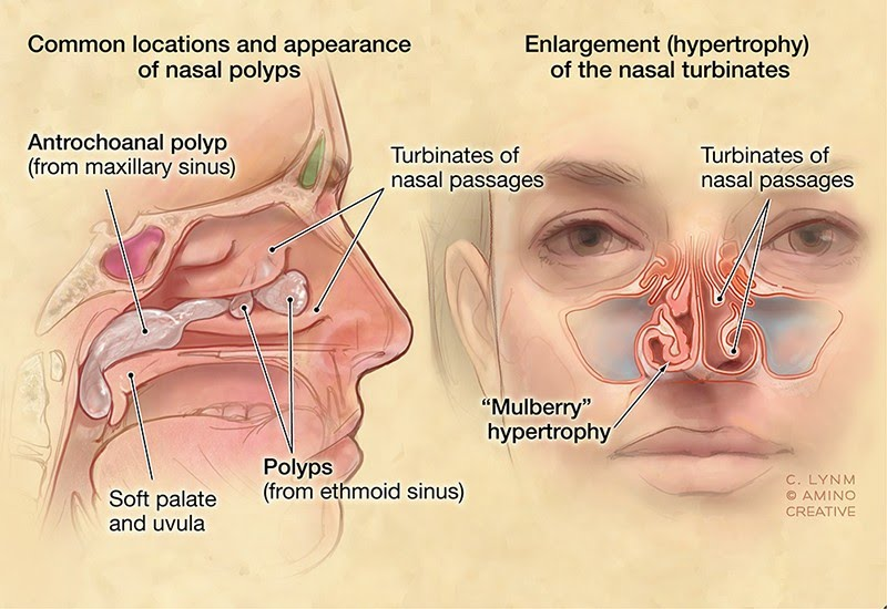 The Growths On Just One Side of My Sinus Were Nasal Polyps
